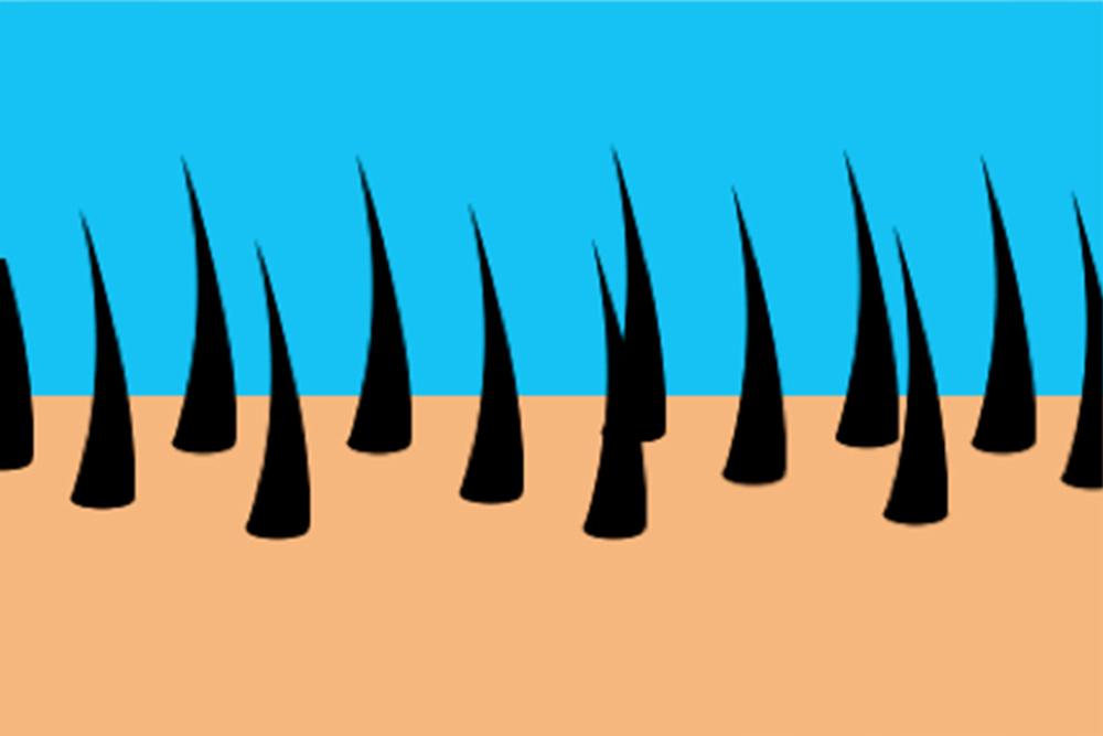 croissance de follicules pileux