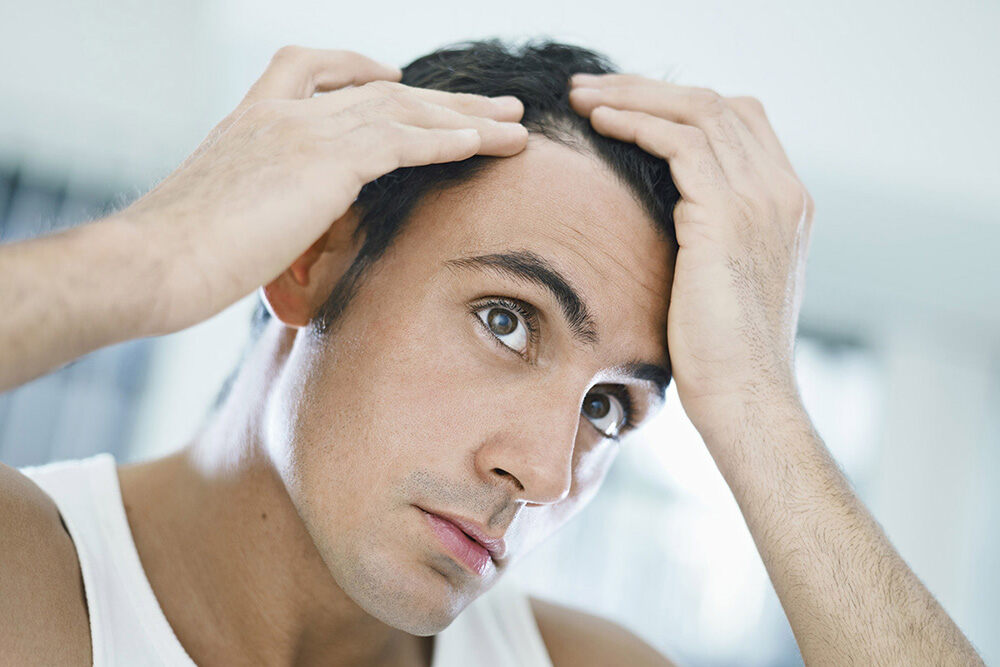 homme ayant les mains dans ses cheveux et tentant de comprendre la perte de cheveux