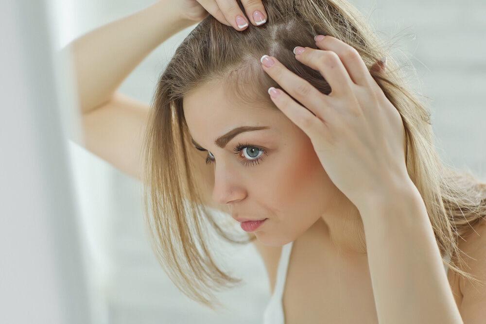 jeune femme blonde inspectant son cuir chevelu pour perte de cheveux