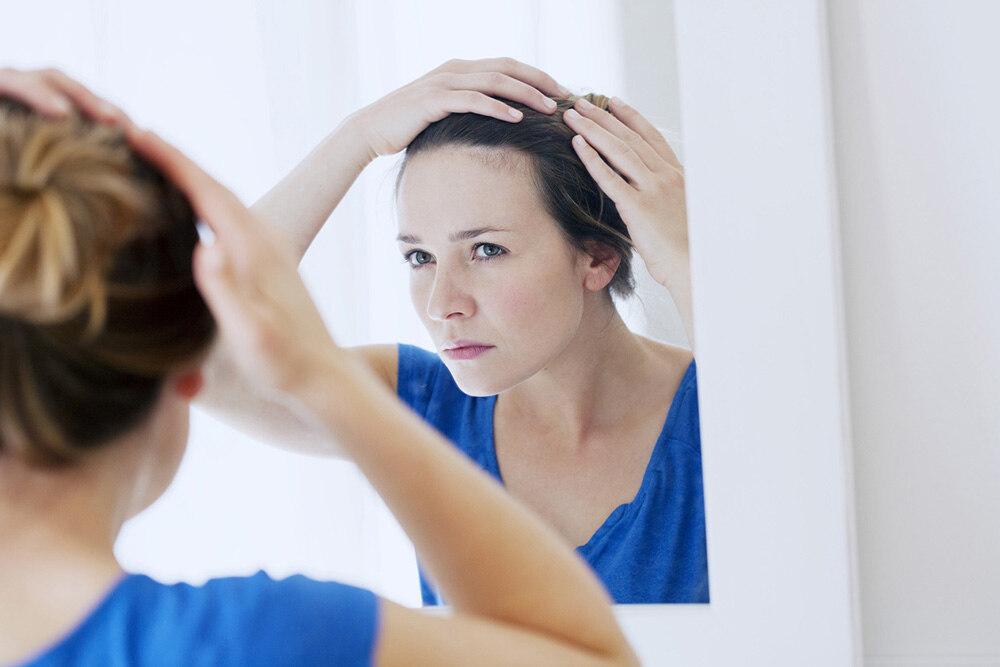 femme se regardant dans un miroir et essayant de comprendre la cause de sa perte de cheveux