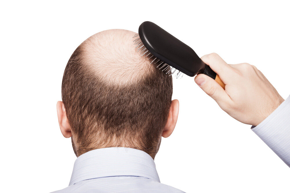 homme ayant perdu des cheveux qui tient une brosse à cheveux